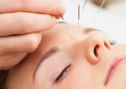 Amblyopie : un nouveau traitement basé sur l'acuponcture