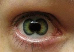 Grave infection causée par des lentilles de couleur prêtées !