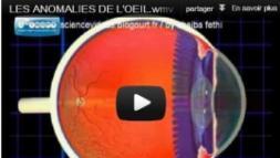 Les principales anomalies de l'oeil