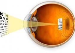 Les scientifiques testent l'optique adaptative pour freiner la myopie