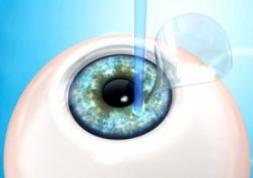 Sondage: opération au Lasik ou lentilles de contact ?