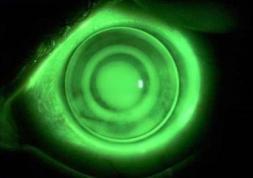 Les lentilles de nuit ortho-k efficaces contre la presbytie !