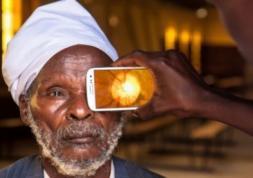 Peek, le smartphone pour dépister les maladies des yeux