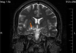 Une tumeur au cerveau dépistée grâce à une optométriste