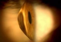 Frotter les yeux trop souvent augmente le risque de kératocône