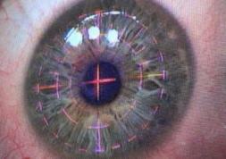 Précautions nécessaires suite à une chirurgie de l\'œil