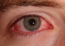 Computer Vision Syndrome: Comment éviter la fatigue des yeux ?