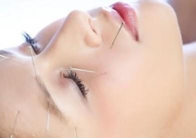 Acupuncture oculaire : remède contre la myopie ou placebo ?