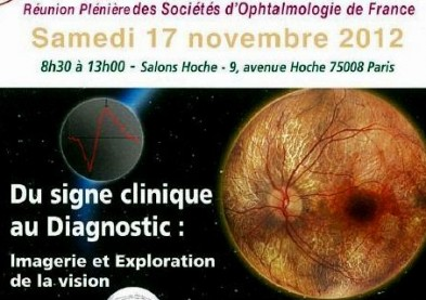Congrès 2012 des Sociétés d'Ophtalmologie: Le programme