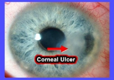 Dépistage et symptômes de l'ulcère cornéen