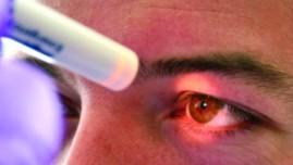 Abcès de cornée et porteurs de lentilles : quels soins ?