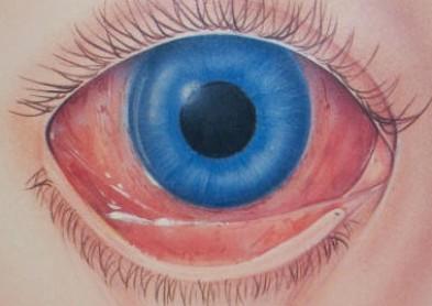 Conjonctivite œil rose : 10 conseils pour l'éviter | Infos lentilles ...