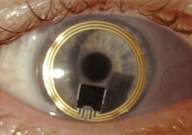 Inventer Demain : Sensimed présente une lentille anti-glaucome