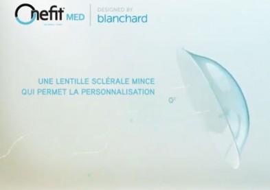 La vue retrouvée grâce à la technologie de lentilles OneFit